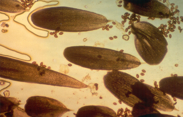 OE Spores with Monarch Butterfly Scales